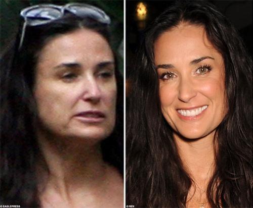 В последний раз Мур прибегала к помощи пластических хирургов и косметологов четыре года назад. Тогда врачи «обновили» тело актрисы с головы до ног, сделав операции даже на «обвисших» коленях…